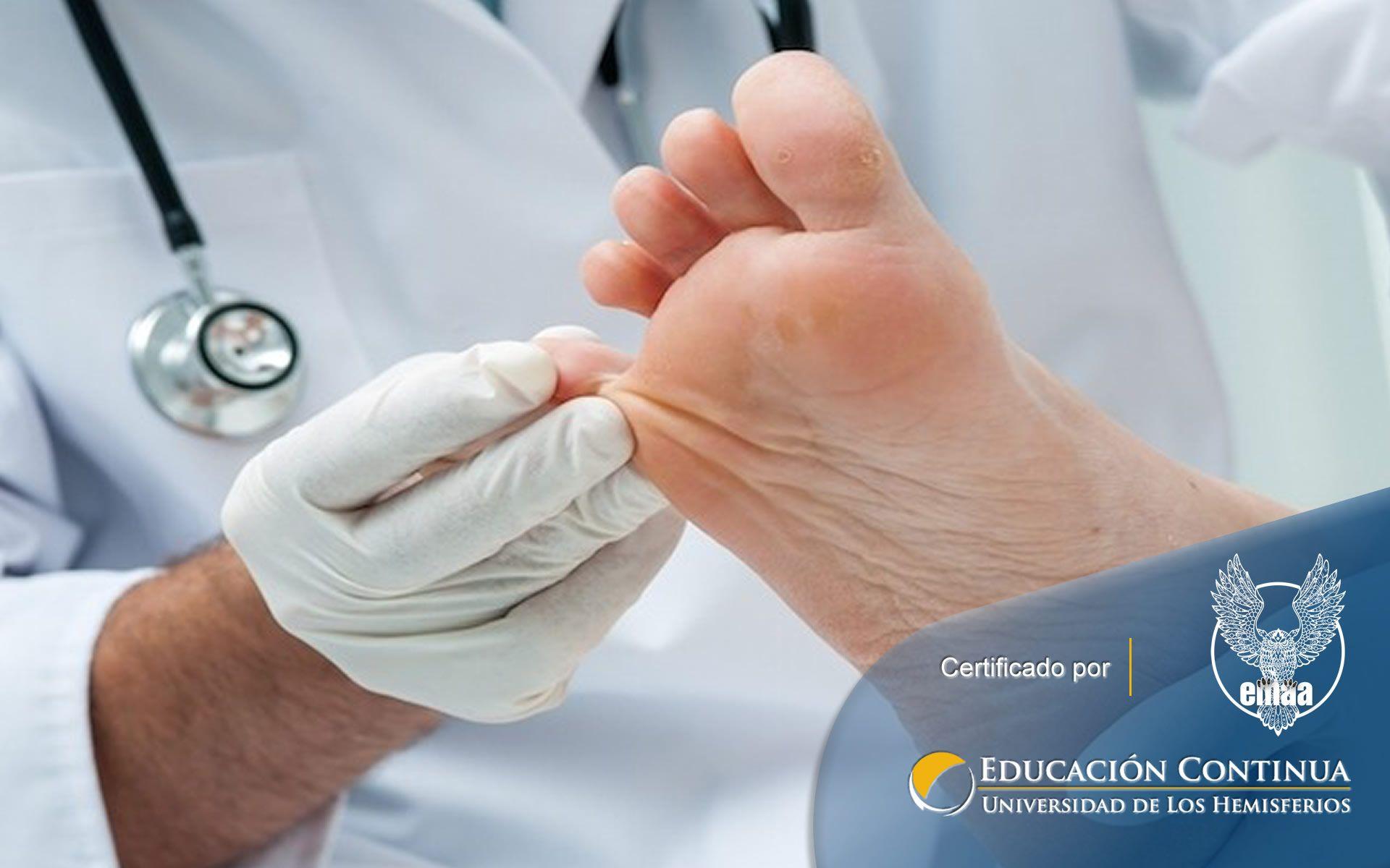 Certificación online de Prevención de Enfermedades por Micosis